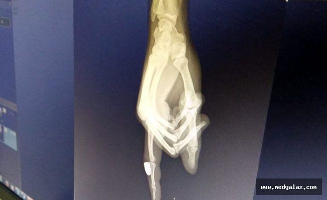 Ardeşen'de Balkonda oturan kadının parmağına maganda kurşunu isabet etti